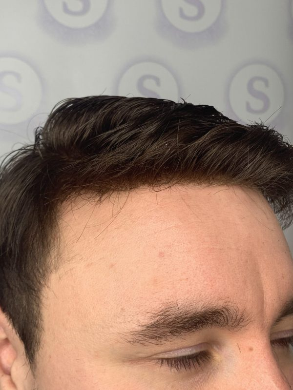 Hair Replacement Manchester After